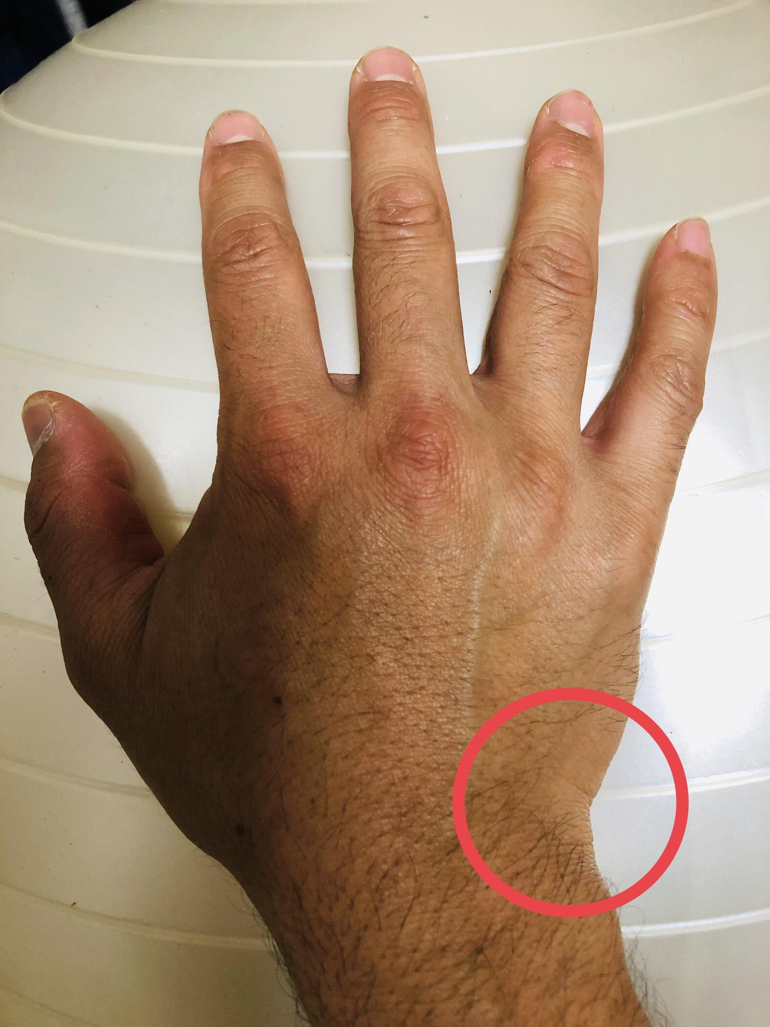 と 痛い 捻る 手首 捻ると痛いテニスによる手首の痛み ~TFCC損傷~