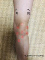 膝の痛み(膝蓋靱帯炎=ジャンパーズニー)